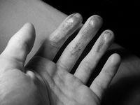 Bloody hands.